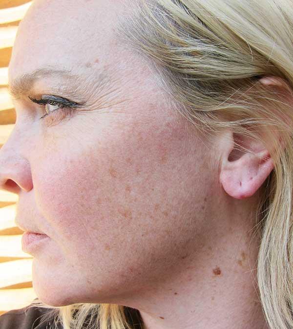 Ohrläppchen Lifting Erfahrungsbericht, Hey Pretty Beauty Blog